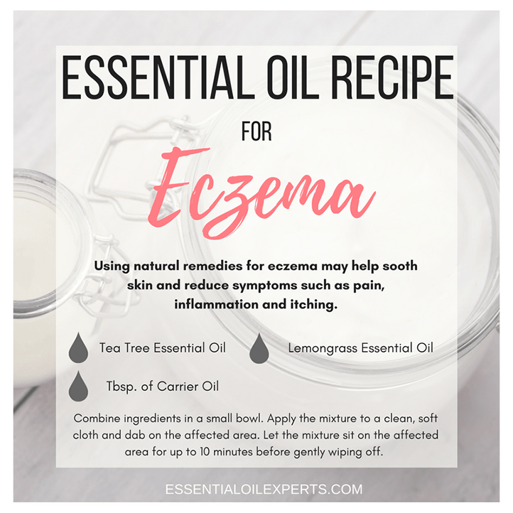 Essential Oil Recipe For Eczema | EssentialOilExperts.com