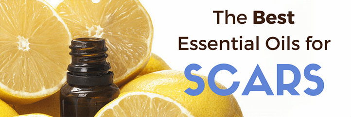 essential oils for scars, scar treatment