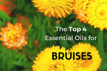 Home remedies for bruises