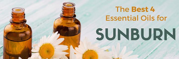 sunburn relief, essential oil for sunburn